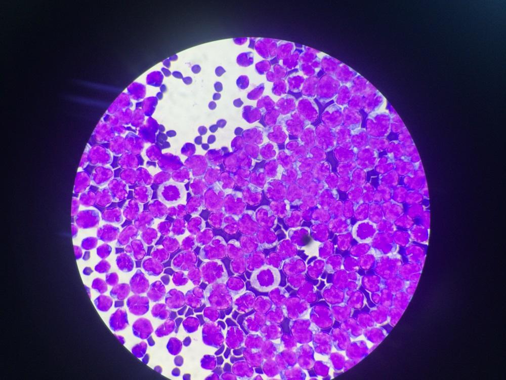 תמונה בהגדלה של פי 100 במיקרוסקופ של תאי הדלקת בנוזל ה CSF